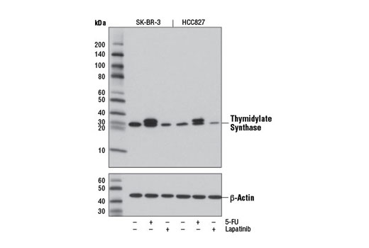 Western blot analysis of extracts from SK-BR-3 and HCC827 cells, untreated or treated with 5-FU (1 μM) or lapatinib (1 μM) for 24 hr, using Thymidylate Synthase (D5B3) XP<sup>® </sup>Rabbit mAb (upper) or β-Actin (13E5) Rabbit mAb #4970 (lower).