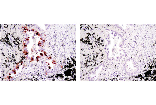 Immunohistochemical analysis of paraffin-embedded human lung carcinoma using Thymidylate Synthase (D5B3) XP<sup>® </sup>Rabbit mAb in the presence of control peptide (left) or antigen-specific peptide (right).