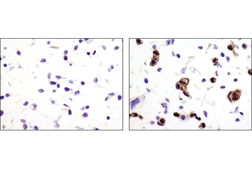 Immunohistochemical analysis of paraffin-embedded A-431 cell pellets, untreated (left) or treated with hEGF #8916 (right), using Phospho-p90RSK (Thr359) (D1E9) Rabbit mAb.