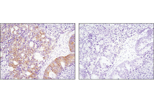 Immunohistochemical analysis of paraffin-embedded human ovarian carcinoma, control (left) or λ phosphatase-treated (right), using Phospho-p90RSK (Thr359) (D1E9) Rabbit mAb.