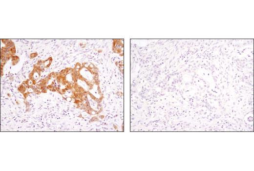 Monoclonal Antibody Immunoprecipitation Positive Regulation of Cell Growth