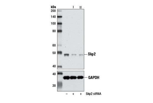 SignalSilence® Skp2 siRNA I - Transfection, UniProt ID Q13309, Entrez ID 6502 #7753, Protein Stability