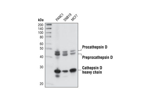 Western blot analysis of extracts from PANC1, SNB19 and MCF-7 cell lines using Cathepsin D Antibody.