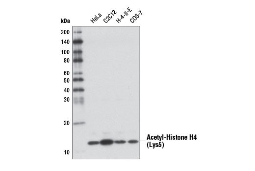 Western blot analysis of extracts from various cell lines using Acetyl-Histone H4 (Lys5) (D12B3) Rabbit mAb.