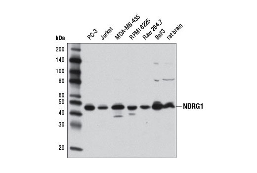 Western blot analysis of extracts from various cell lines and rat brain tissue using NDRG1 (D6C2) Rabbit mAb.