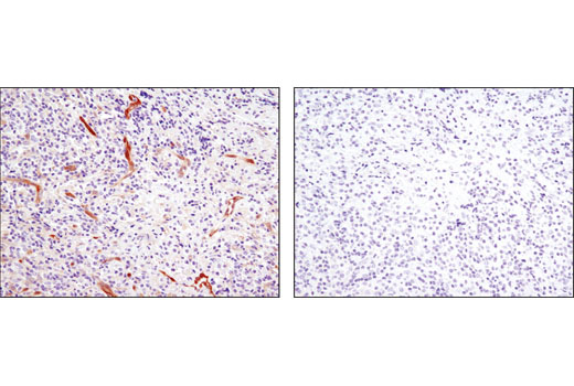 Immunohistochemical analysis of paraffin-embedded human lymphoma using NDRG1 (D8G9) XP<sup>®</sup> Rabbit mAb in the presence of control peptide (left) or antigen-specific peptide (right).