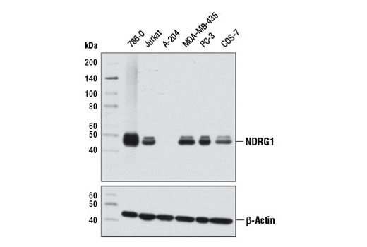 Western blot analysis of extracts from various cell lines using NDRG1 (D8G9) XP<sup>®</sup> Rabbit mAb (upper) and β-Actin (D6A8) Rabbit mAb #8457 (lower).