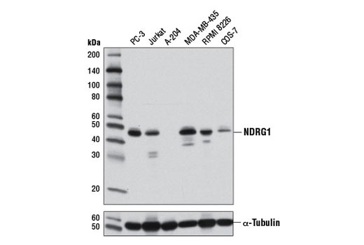 Western blot analysis of extracts from various cell lines using NDRG1 (D10F8) Rabbit mAb (upper) and α-Tubulin (11H10) Rabbit mAb #2125 (lower).