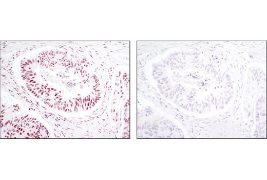 Immunohistochemical analysis of paraffin-embedded human colon carcinoma using SP1 (D4C3) Rabbit mAb in the presence of control peptide (left) or antigen-specific peptide (right).