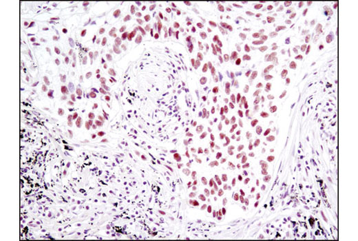 Immunohistochemical analysis of paraffin-embedded human lung carcinoma using SP1 (D4C3) Rabbit mAb.