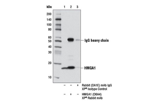 Monoclonal Antibody Immunoprecipitation 5'-deoxyribose-5-phosphate Lyase Activity