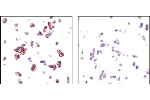 Immunohistochemical analysis of paraffin-embedded LNCaP cells untreated (left) or treated with LY294002 (right) using Phospho-Akt (Ser473) (736E11) Rabbit mAb (IHC Specific) #3787.