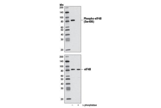 Monoclonal Antibody - Phospho-eIF4B (Ser406) (D1C10) Rabbit mAb, UniProt ID P23588, Entrez ID 1975 #8151 - #8151