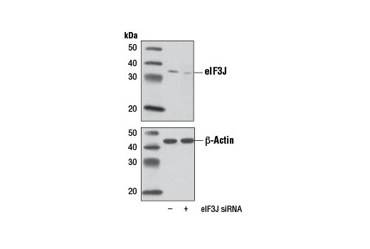 Western blot analysis of extracts from HeLa cells, mock transfected (-) or transfected with eIF3J-specific siRNA (+), using eIF3J (D21G7) XP<sup>® </sup>Rabbit mAb.