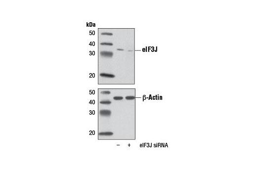 Monoclonal Antibody - eIF3J (D21G7) XP® Rabbit mAb, UniProt ID O75822, Entrez ID 8669 #8161, Eif3j