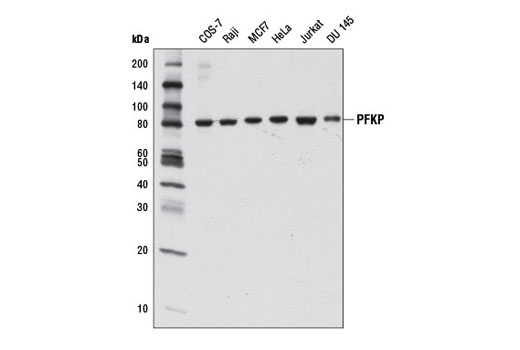 Western blot analysis of extracts from various cell lines using PFKP (D4B2) Rabbit mAb.