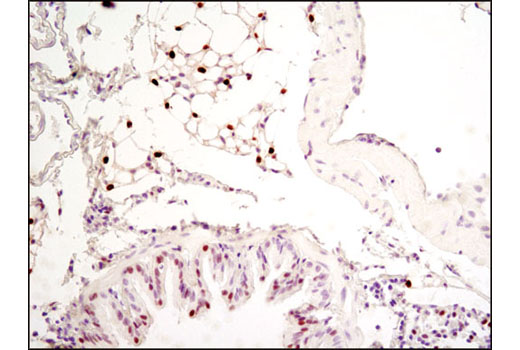 Immunohistochemical analysis of paraffin-embedded mouse lung using C/EBPα (D56F10) XP<sup>®</sup> Rabbit mAb.