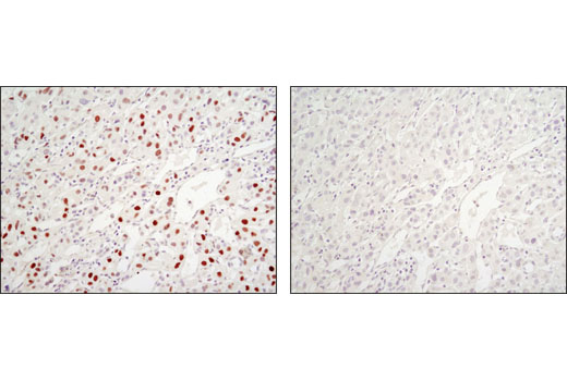 Immunohistochemical analysis of paraffin-embedded human hepatocellular carcinoma using C/EBPα (D56F10) XP<sup>®</sup> Rabbit mAb in the presence of control peptide (left) or antigen-specific peptide (right).