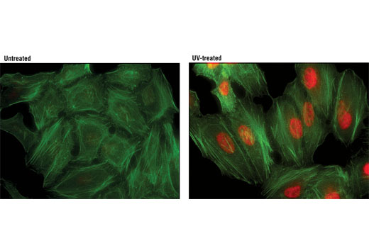 Immunofluorescent analysis of HeLa cells, untreated (left) or UV-treated (right) using Phospho-p38 MAPK (Thr180/Tyr182) (D3F9) XP<sup>®</sup> Rabbit mAb (Alexa Fluor<sup>®</sup> 594 Conjugate) (red). Actin filaments were labeled with Alexa Fluor<sup>®</sup> 488 phalloidin (green).