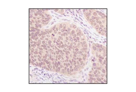 Immunohistochemical analysis of paraffin-embedded human lung carcinoma, usinig SUMO-1 Antibody.