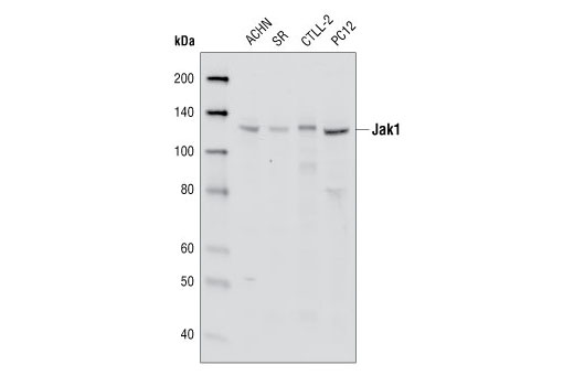 Western blot analysis of extracts from ACHN, SR, CTLL-2 and PC12 cell lines using Jak1 (6G4) Rabbit mAb.