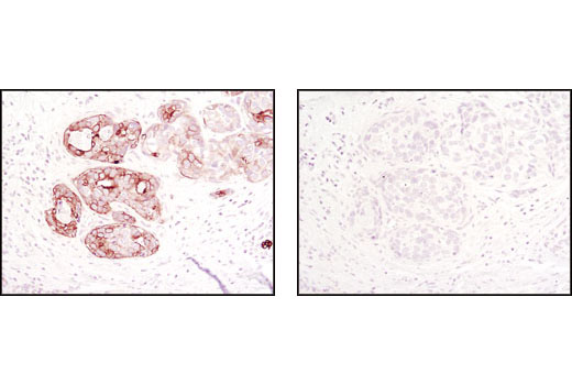 Immunohistochemical analysis of paraffin-embedded human breast carcinoma using Jak1 (6G4) Rabbit mAb #3344, in the presence of control peptide (left) or Jak1 Blocking Peptide (right).