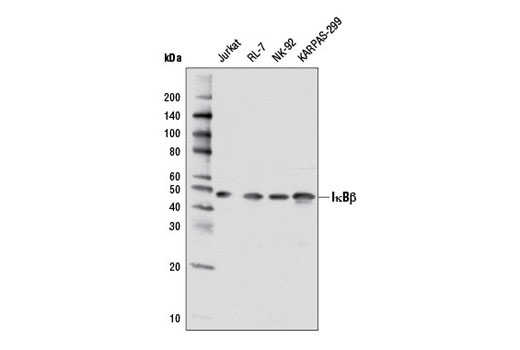 Western blot analysis of extracts from various cell lines using IκBβ (7B4) Mouse mAb.