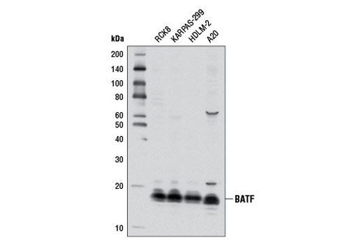 Western blot analysis of extracts from various cell lines using BATF (D7C5) Rabbit mAb. Cell Line Source: Dr Abraham Karpas at the University of Cambridge.