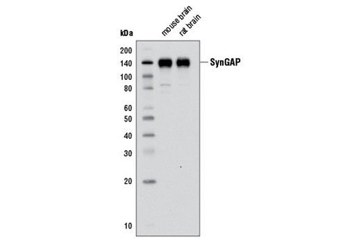 Western blot analysis of extracts from mouse and rat brain tissue using SynGAP (D88G1) Rabbit mAb.