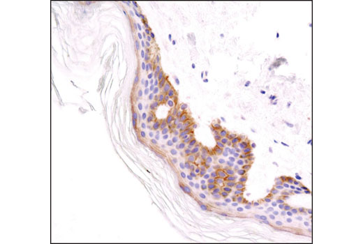 Immunohistochemical analysis of paraffin-embedded human skin using Integrin β1 (D2E5) Rabbit mAb.