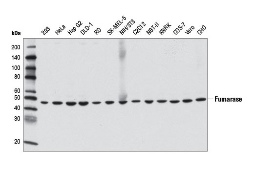 Western blot analysis of extracts from various cell lines using Fumarase (D9C5) Rabbit mAb.