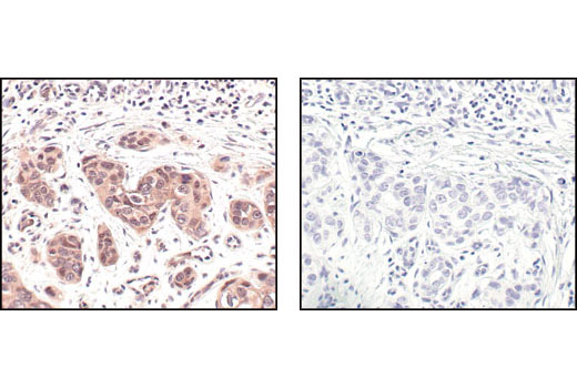 Immunohistochemical analysis of paraffin-embedded human breast carcinoma, using NEDD8 (19E3) Rabbit mAb, preincubated with control peptide (left) or Nedd8 Blocking Peptide #1048 (right).
