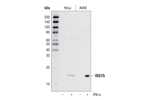Western blot analysis of lysates from HeLa and A549 cells, untreated (-) or treated with IFN-α (1000 U/mL) (+) for 24 hours, using ISG15 (22D2) Rabbit mAb.