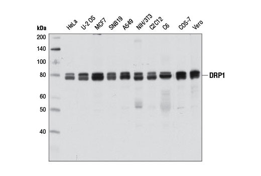 Western blot analysis of extracts from various cell lines using DRP1 (D8H5) Rabbit mAb.