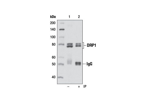 Immunoprecipitation of DRP1 from NIH/3T3 cell extracts using DRP1 (D8H5) Rabbit mAb (lane 2). Western blot detection was performed using the same antibody. Lane 1 is 10% input.