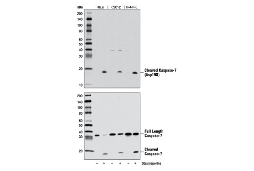 Western blot analysis of extracts from HeLa, C2C12, and H-4-II-E cells, untreated (-) or treated (+) with Staurosporine #9953 (1 μM, 3 hr), using Cleaved Caspase-7 (Asp198) (D6H1) Rabbit mAb (upper) and Caspase-7 Antibody #9492 (lower).