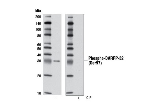 Western blot analysis of extracts from MKN-45 cells using Phospho-DARPP-32 (Ser97) (D11A5) Rabbit mAb. The phospho-specificity of the antibody was verified by treating the membrane with (+) or without (-) calf intestinal phosphatase (CIP) after western transfer.