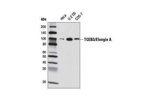 Polyclonal Antibody - TCEB3/Elongin A Antibody - Western Blotting, UniProt ID Q14241, Entrez ID 6924 #3685, Chromatin Regulation / Acetylation
