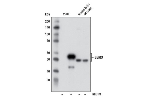 Polyclonal Antibody - EGR3 Antibody - Western Blotting, UniProt ID Q06889, Entrez ID 1960 #2559, Egr3