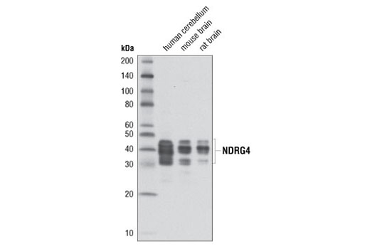Western blot analysis of extracts from human cerebellum, mouse brain, and rat brain using NDRG4 (D4A6) Rabbit mAb.