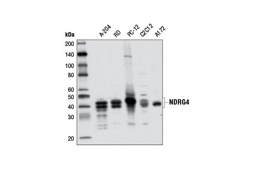 Western blot analysis of extracts from various cell lines using NDRG4 (D4A6) Rabbit mAb.