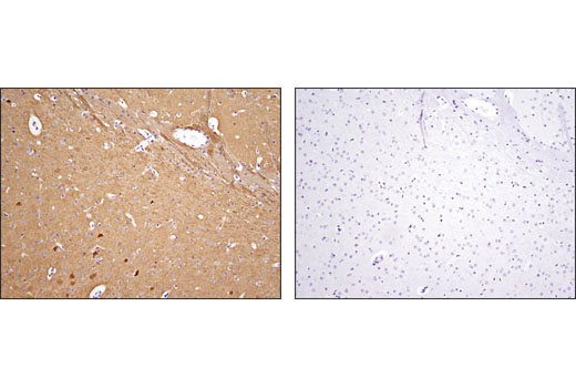 Immunohistochemical analysis of paraffin-embedded mouse brain using NDRG4 (D4A6) Rabbit mAb in the presence of control peptide (left) or antigen-specific peptide(right).