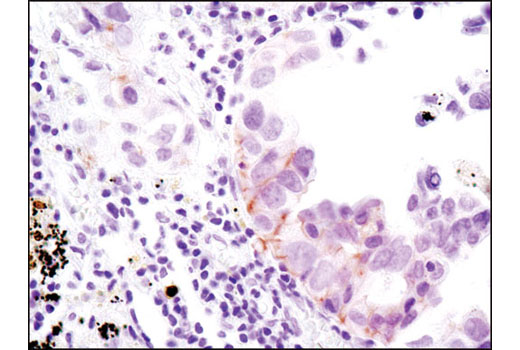 Immunohistochemical analysis of paraffin-embedded human lung carcinoma using Phospho-HER3/ErbB3 (Tyr1289) (D1B5) Rabbit mAb.