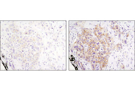 Immunohistochemical analysis of parafin-embedded human lung carcinoma using Phospho-HER3/ErbB3 (Tyr1289) (D1B5) Rabbit mAb after retreival with citrate (left) or EDTA (right).