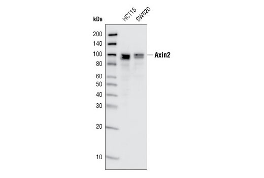 Western blot analysis of total cell lysates from HCT15 and SW620 cells, using Axin2 (76G2) Rabbit mAb.