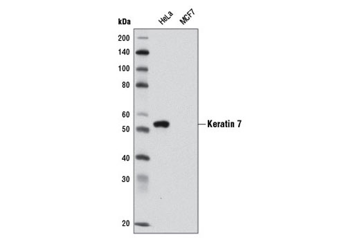 Western blot analysis of extracts from HeLa and MCF7 cells using Keratin 7 (D1E4) XP<sup>®</sup> Rabbit mAb. Note that MCF7 cells are negative for Keratin 7, as expected.
