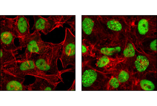 Confocal immunofluorescent analysis of HeLa cells, untreated (left) or UV-treated (right), using RPA32 (4E4) Rat mAb (green) showing translocation to distinct nuclear foci after UV damage. Actin filaments have been labeled with Alexa Fluor® 555 phalloidin. Blue pseudocolor = DRAQ5™ (fluorescent DNA dye).