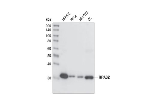Western blot analysis of extracts from various cell lines, using RPA32 (4E4) Rat mAb.
