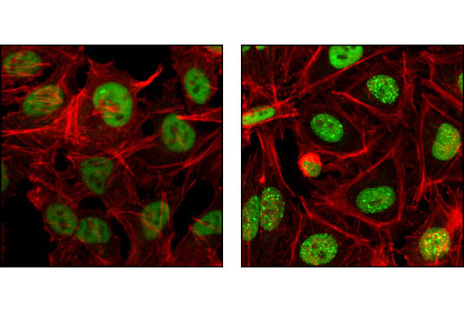 Confocal immunofluorescent analysis of HeLa cells, untreated (left) or UV-treated (right), using RPA70 (4D9) Rat mAb (green) showing translocation to distinct nuclear foci after UV damage. Actin filaments have been labeled with Alexa Fluor® 555 phalloidin. Blue pseudocolor = DRAQ5<sup>®</sup> #4084 (fluorescent DNA dye).
