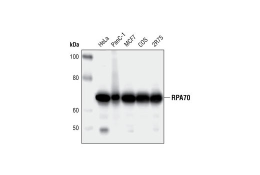 Western blot analysis of extracts from various cell lines, using RPA70 (4D9) Rat mAb.